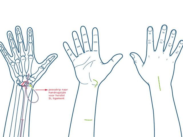 Illustraties handaandoeningen